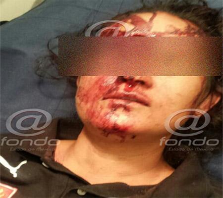 El atacante huyó después de la agresión.
