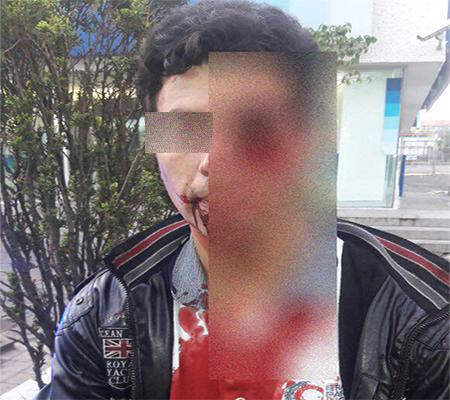 Los asaltantes huyeron luego de herir al joven.