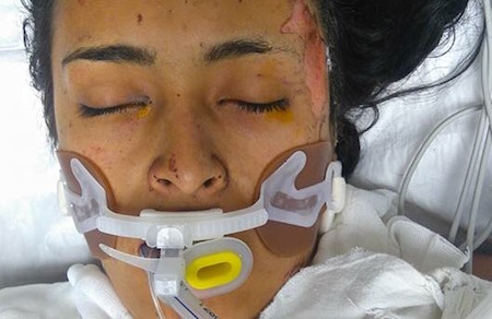 hospitalizada-tultepec